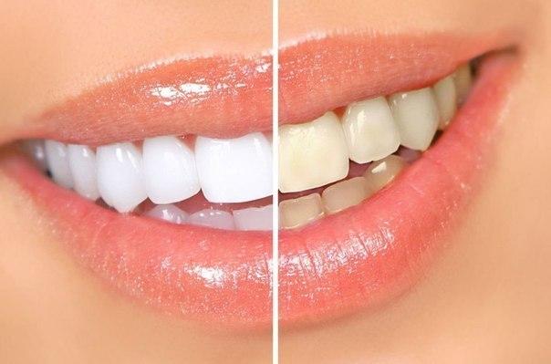 وصفات طبيعية لتبيض الاسنان picture_1509034604_436.jpg