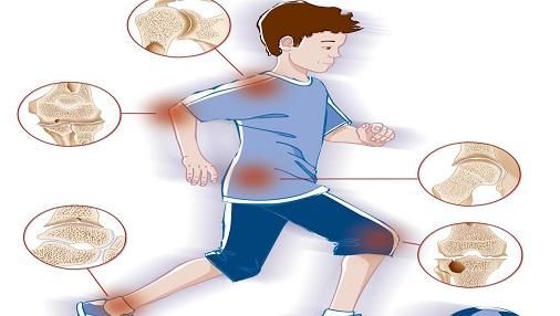 وصفة طبيعية لتقوية العظام وعلاج الم المفاصل علاج-الم-المفاصل-والعظام.jpg